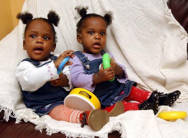 Cặp song sinh chào đời với phần xương cụt dính liền, bố mẹ cho con thực hiện ca mổ lịch sử và cuộc sống gây ngỡ ngàng sau 20 năm - Ảnh 4.
