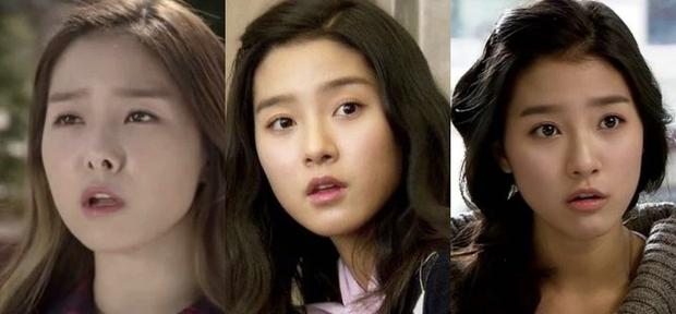Rợn người hậu quả thẩm mỹ mũi thất bại: Trịnh Sảng đâm thủng vạn vật, Kim So Eun lồi kỳ lạ nhưng dị nhất là vụ mỹ nhân bị hoại tử - Ảnh 17.