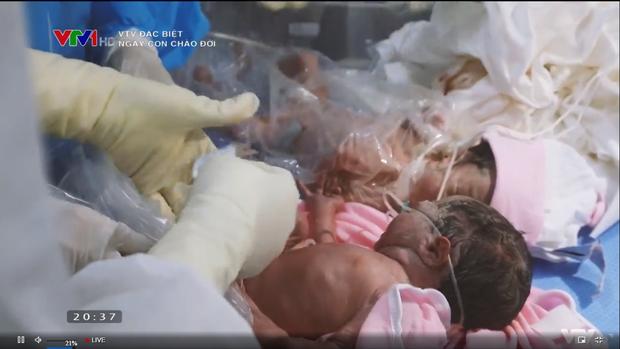 Phóng sự đặc biệt VTV Ngày con chào đời - những giọt nước mắt của hạnh phúc đón chào một sinh linh giữa đại dịch - Ảnh 2.