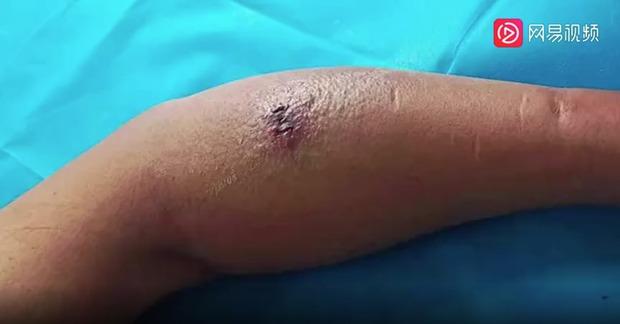 Người đàn ông sốt cao 2 ngày sau khi bị muỗi đốt gây viêm cân hoại tử và phải cắt cụt chi để giữ lại tính mạng - Ảnh 1.