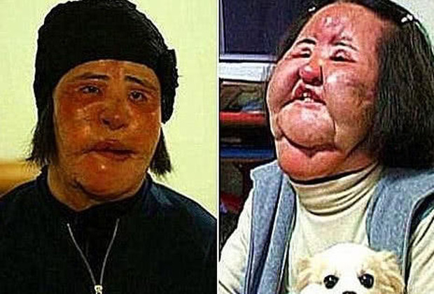 Cuộc đời khổ đau của thảm hoạ thẩm mỹ Han Mi Ok: Tự tiêm dầu ăn vì nghiện dao kéo, mắc bệnh tâm thần và cái chết chấn động - Ảnh 9.