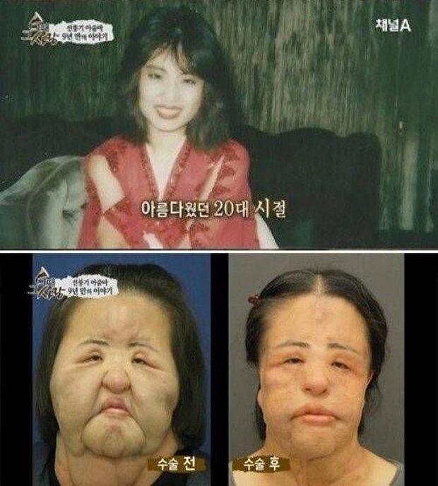 Cuộc đời khổ đau của thảm hoạ thẩm mỹ Han Mi Ok: Tự tiêm dầu ăn vì nghiện dao kéo, mắc bệnh tâm thần và cái chết chấn động - Ảnh 7.