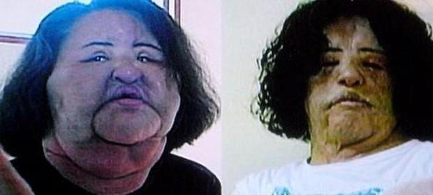 Cuộc đời khổ đau của thảm hoạ thẩm mỹ Han Mi Ok: Tự tiêm dầu ăn vì nghiện dao kéo, mắc bệnh tâm thần và cái chết chấn động - Ảnh 8.