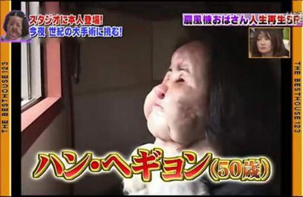Cuộc đời khổ đau của thảm hoạ thẩm mỹ Han Mi Ok: Tự tiêm dầu ăn vì nghiện dao kéo, mắc bệnh tâm thần và cái chết chấn động - Ảnh 10.