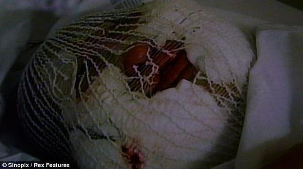 Cuộc đời khổ đau của thảm hoạ thẩm mỹ Han Mi Ok: Tự tiêm dầu ăn vì nghiện dao kéo, mắc bệnh tâm thần và cái chết chấn động - Ảnh 11.