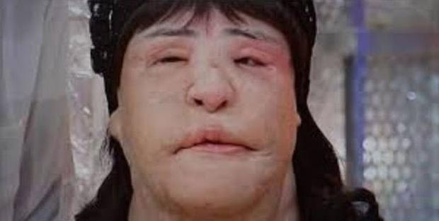 Cuộc đời khổ đau của thảm hoạ thẩm mỹ Han Mi Ok: Tự tiêm dầu ăn vì nghiện dao kéo, mắc bệnh tâm thần và cái chết chấn động - Ảnh 12.