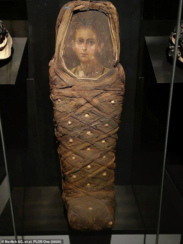 Phục dựng dung mạo em bé Ai Cập chết nghìn năm trước, kết quả giống chân dung gắn trên xác ướp đến kinh ngạc ngoại trừ 1 điểm - Ảnh 1.
