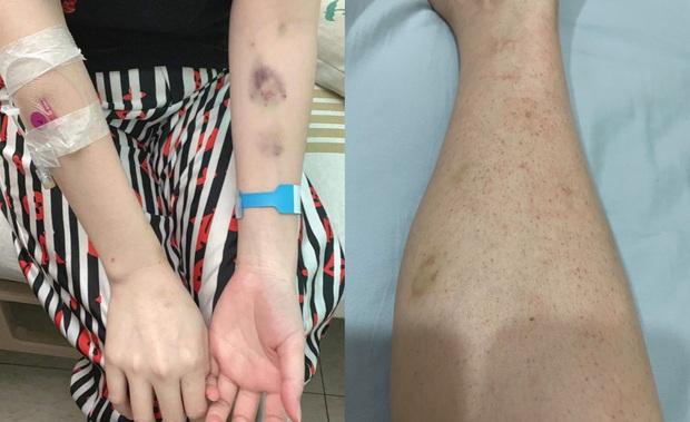 Cô gái Tây Ninh phát hiện ung thư ở tuổi 28: Hối hận vì từng nhậu nhẹt liên tục, đổ bệnh mới thấy tiền không quan trọng - Ảnh 3.