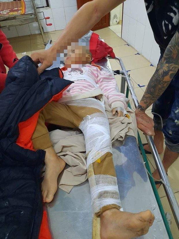 Hà Tĩnh: Mưa lớn gây sạt lở đất khiến 2 cháu nhỏ bị thương - Ảnh 2.