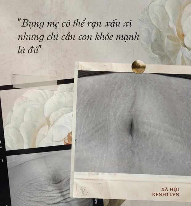 Các mẹ bầu đồng loạt khoe bụng đầy vết rạn thâm đen dưới bài đăng của Hòa Minzy: Những dấu tích của sự hi sinh, của tình yêu thương vô bờ bến - Ảnh 4.