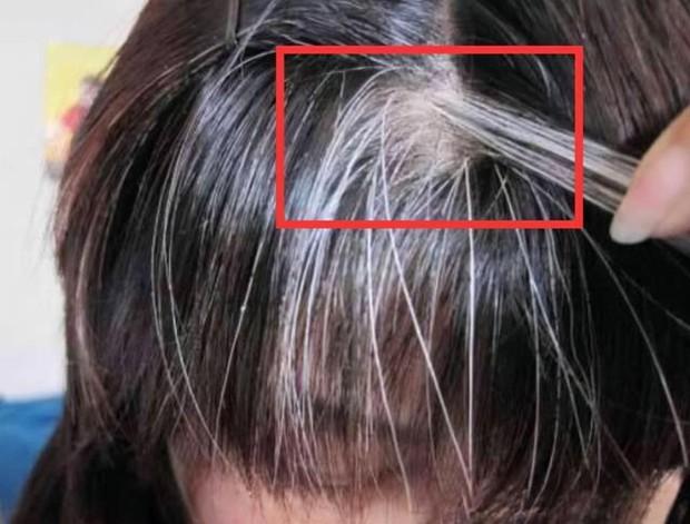 Tóc trắng mọc trên trán, thái dương và sau đầu cảnh báo điều gì? Làm được 4 việc này tóc trắng còn lâu mới xuất hiện - Ảnh 1.