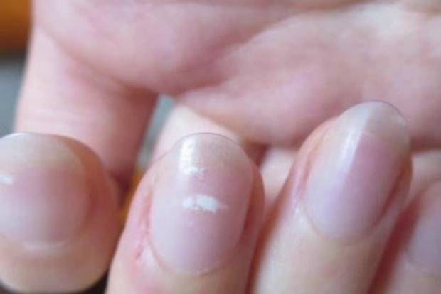 Gan có khỏe hay không, cứ giơ ngón tay giữa lên mà quan sát: Nếu không có 4 biểu hiện sau nghĩa là gan khỏe mạnh - Ảnh 3.