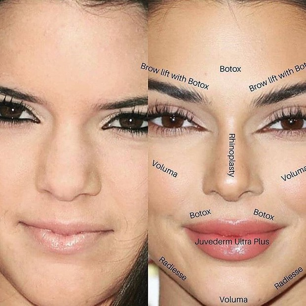 Nếu Kendall Jenner nói cô ấy đẹp tự nhiên, bạn đừng tin! - Ảnh 3.