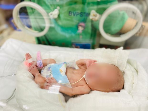 Kỳ tích cứu sống bé gái sinh non nhẹ cân nhất Việt Nam chỉ nặng 400 gram - Ảnh 1.