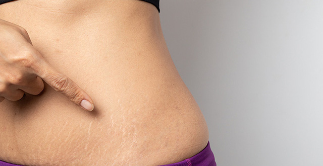 Rạn da vùng bụng là nỗi sợ của tất cả chị em, làm thế nào để ngăn ngừa rạn  da trước khi sinh?