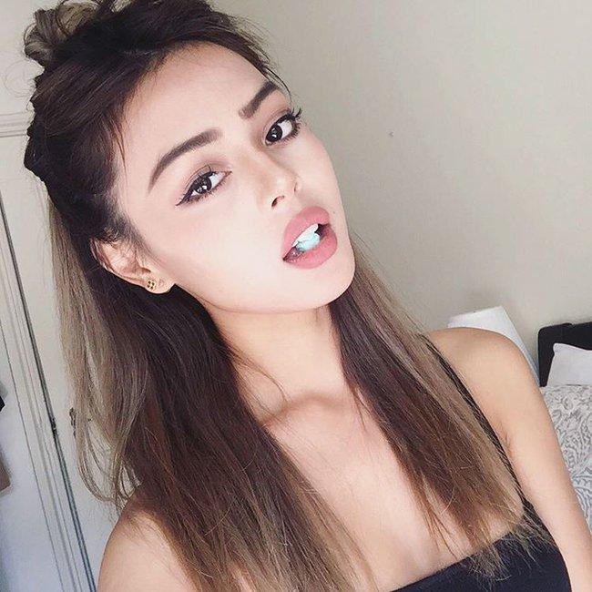 3 kiểu tiêm môi đang được con gái Việt yêu thích nhất & những điều bạn cần tìm hiểu - Ảnh 3.