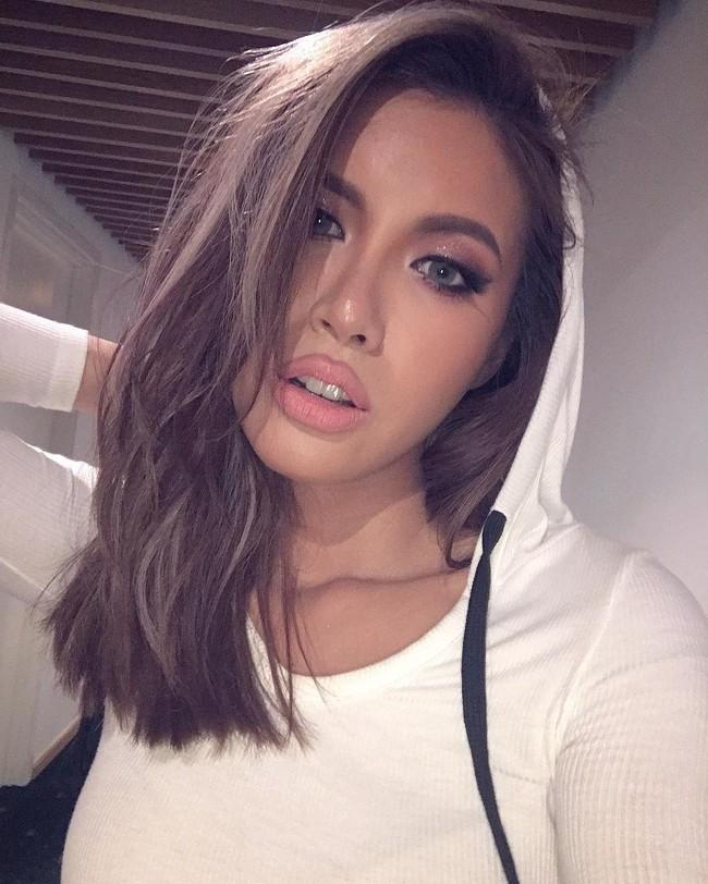 3 kiểu tiêm môi đang được con gái Việt yêu thích nhất & những điều bạn cần tìm hiểu - Ảnh 6.