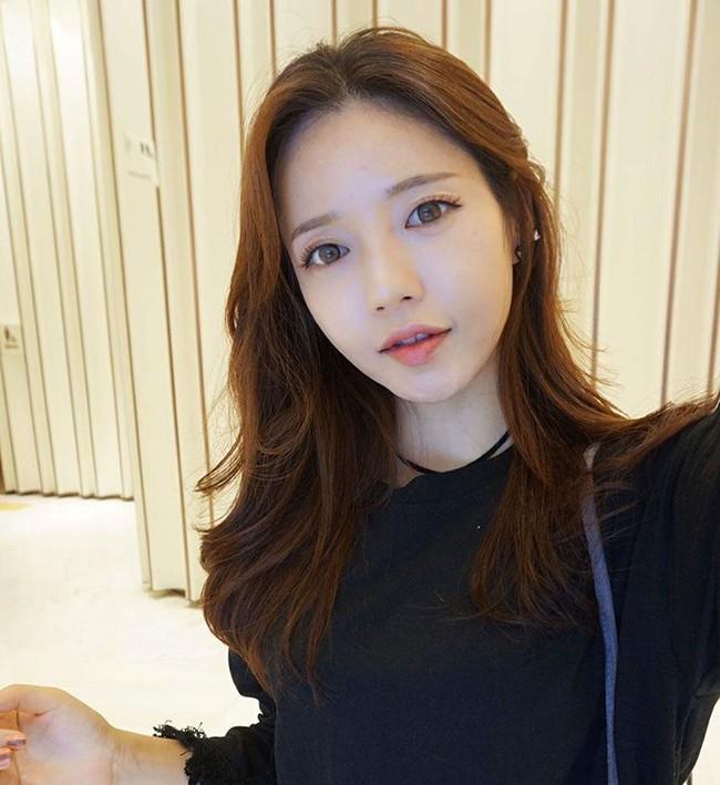 3 kiểu tiêm môi đang được con gái Việt yêu thích nhất & những điều bạn cần tìm hiểu - Ảnh 20.