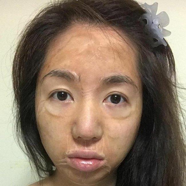 Loại mặt nạ kỳ dị khiến da bạn nhăn nheo như cụ già nhưng sau đó là căng bóng, mịn mượt như da em bé - Ảnh 2.