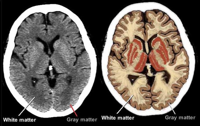 Khoa học chứng minh: Giảm cân đi nếu bạn muốn có một bộ não khoẻ mạnh - Ảnh 2.
