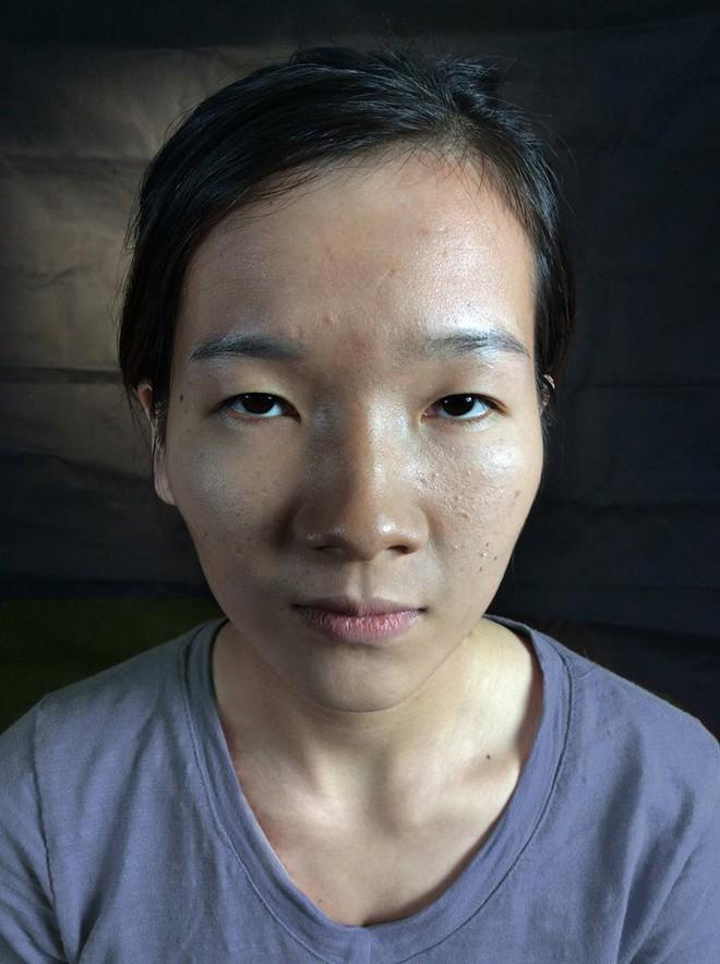 """Màn lột xác bất ngờ của nữ sinh ĐH Y khoa Vinh từng bị nhà người yêu từ chối vì có """"đôi mắt lươn"""" - Ảnh 1."""