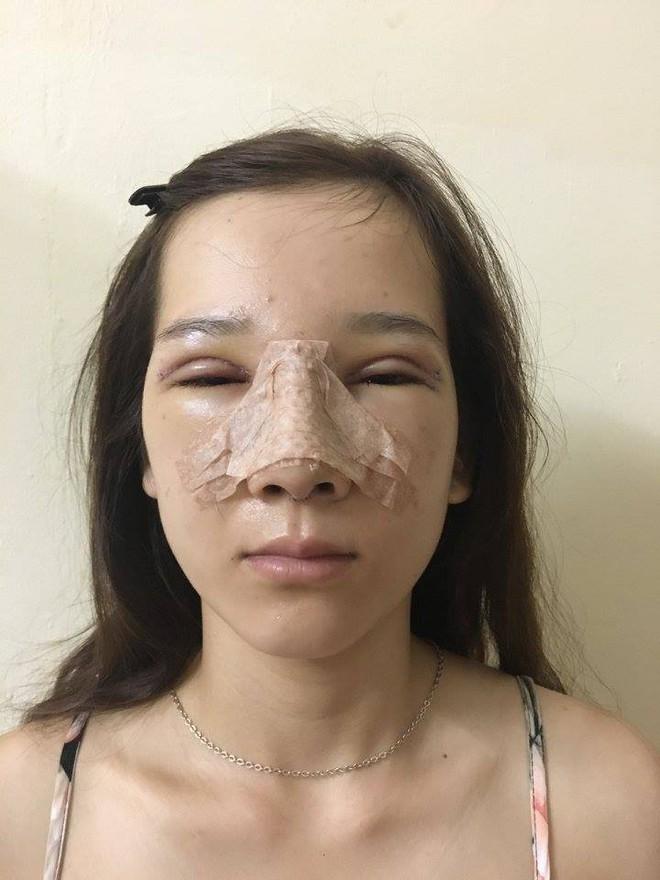 """Màn lột xác bất ngờ của nữ sinh ĐH Y khoa Vinh từng bị nhà người yêu từ chối vì có """"đôi mắt lươn"""" - Ảnh 5."""
