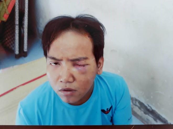 Hung thủ vụ sát hại bé 6 tuổi ở Sài Gòn khai thường hoang tưởng nghe tiếng cháu bé chửi mình - Ảnh 1.
