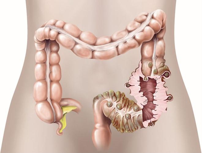 Người đàn ông rơi vào viêm tụy cấp tính vì ăn quá nhiều thịt - đã đến lúc không thể chủ quan nữa - Ảnh 4.