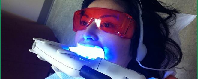 Chuyên gia bật mí ưu nhược điểm các phương pháp tẩy trắng răng phổ biến hiện nay - Ảnh 1.
