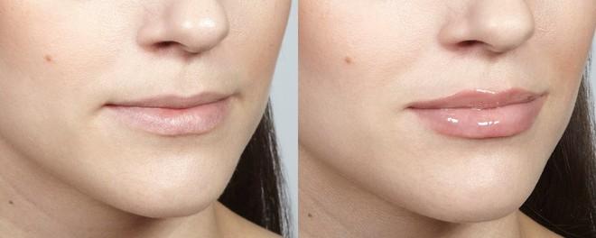 4 phương pháp siêu hot giúp bạn có ngay đôi môi tều gấp đôi bình thường - Ảnh 4.