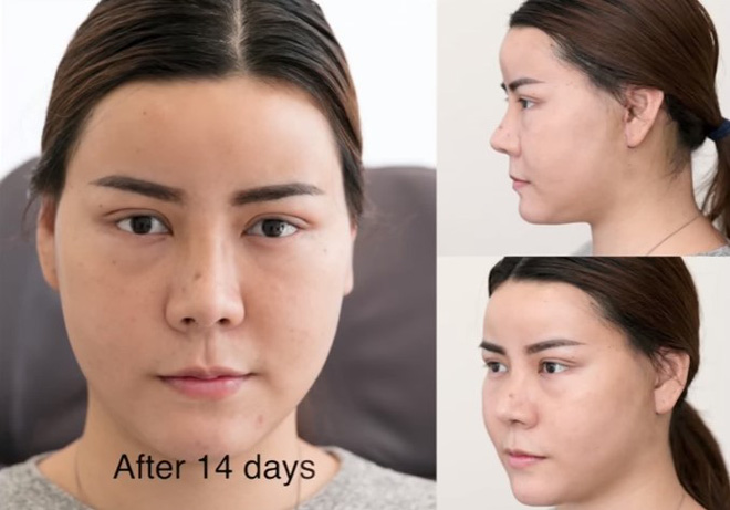 Không hài lòng với vẻ ngoài của mình, thiếu nữ lột xác xinh ngất ngây sau khi chi 1,3 tỷ phẫu thuật thẩm mỹ - Ảnh 4.