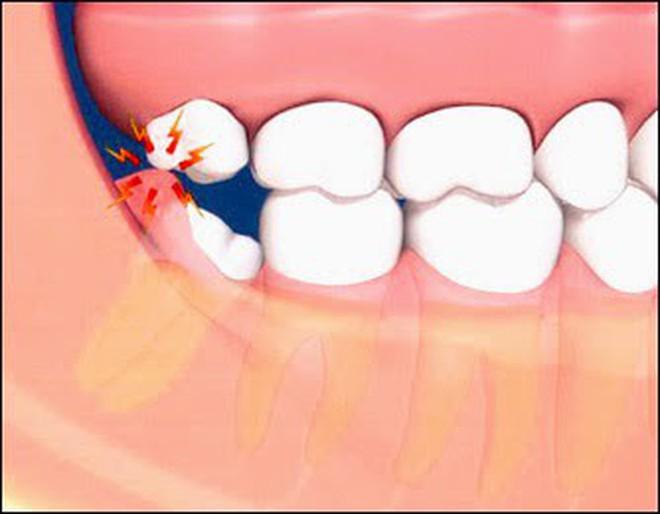 Đau răng khôn thì ai cũng từng nhưng đâu là cảnh giới của sự nguy hiểm thì mấy ai biết - Ảnh 3.