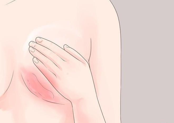 6 triệu chứng bất thường cảnh báo sức khỏe con gái đang gặp vấn đề nghiêm trọng - Ảnh 2.