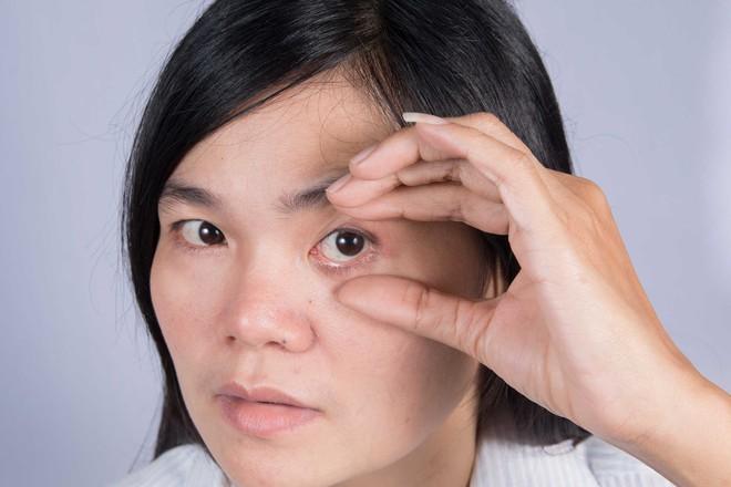 6 triệu chứng bất thường cảnh báo sức khỏe con gái đang gặp vấn đề nghiêm trọng - Ảnh 6.