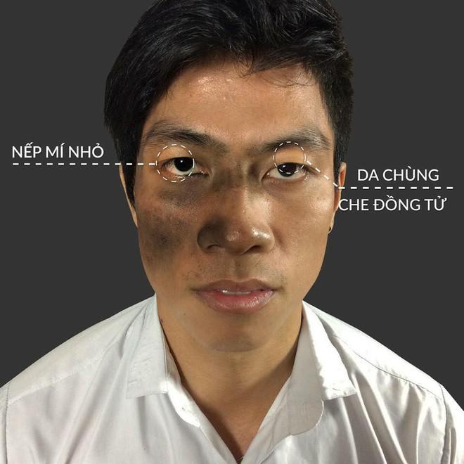 """Không xin được việc vì vết chàm lớn trên gương mặt, thanh niên quyết tâm """"lột xác"""" diện mạo và cái kết - Ảnh 4."""