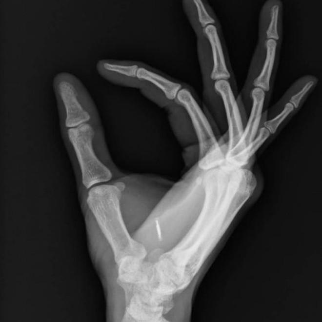 Cận cảnh đôi bàn tay cấy chip của người Thụy Điển, thay thế cho hàng tá loại thẻ rắc rối - Ảnh 3.