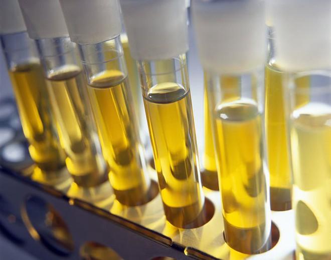Đây là phát minh thực sự biến nước tiểu con người thành vàng ròng cho môi trường - Ảnh 2.