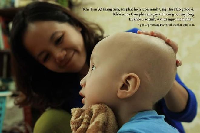"""Lời tâm sá»± xúc động từ mẹ em bé ung thÆ° não trong bộ ảnh """"24h của Tom"""": Mình không được than vãn, vì thiệt thòi là con... - Ảnh 1."""