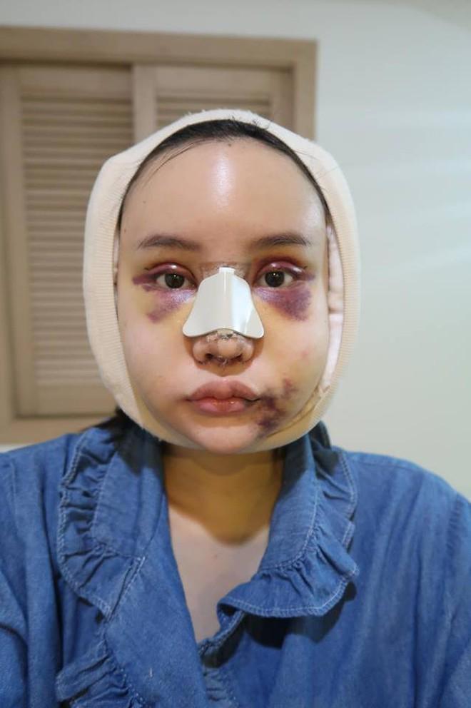 Hot Facebooker Thái Lan 'bật mí' quá trình phẫu thuật thẩm mỹ đau đớn nhưng trả về kết quả đẹp xuất sắc