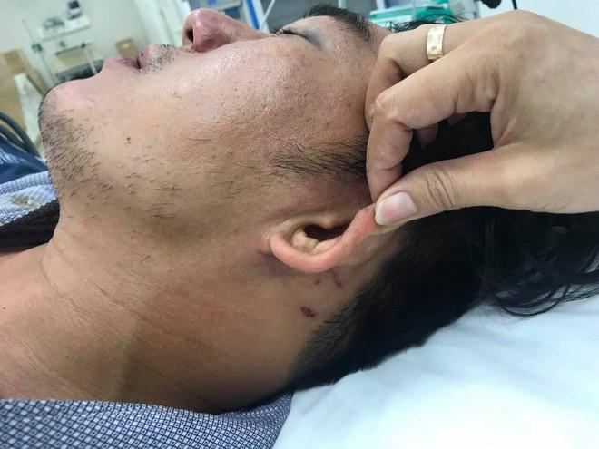 Khách tố bị nhân viên đuổi đánh dã man sau bữa ăn ở Đà Nẵng, quản lý nhà hàng nói gì? - Ảnh 2.