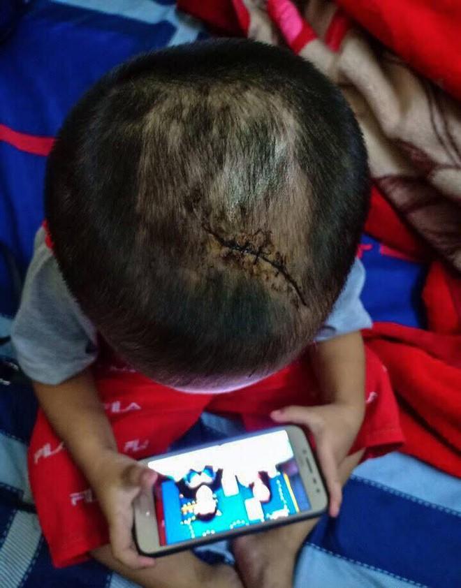 Nghi án bạo hành ở Bình Dương: Bé trai 3 tuổi bị mẹ và cha dượng bạo hành - Ảnh 1.