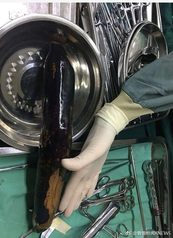 """Trung Quốc: Tới bệnh viện với quả cà tím trong trực tràng, người đàn ông khai """"để chữa táo bón theo mẹo dân gian"""" - Ảnh 2."""