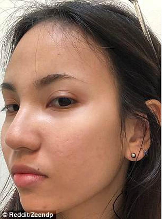 """Cô gái người Việt lên cả báo nước ngoài vì trị khỏi mụn một cách """"thần kỳ"""" - Ảnh 2."""