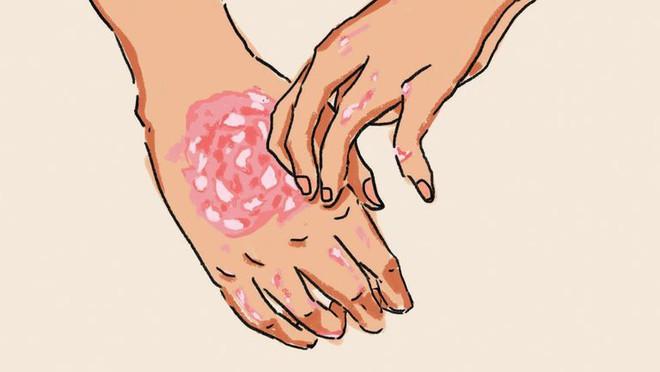 5 căn bệnh ngoài da cực dễ mắc phải trong mùa hè mà bạn không nên chủ quan xem thường - Ảnh 4.