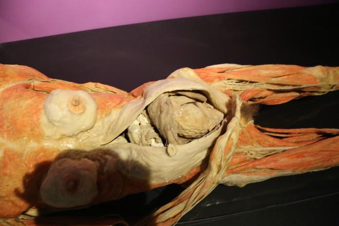 Người phụ nữ mang bầu được mổ phần bụng tại triển lãm.