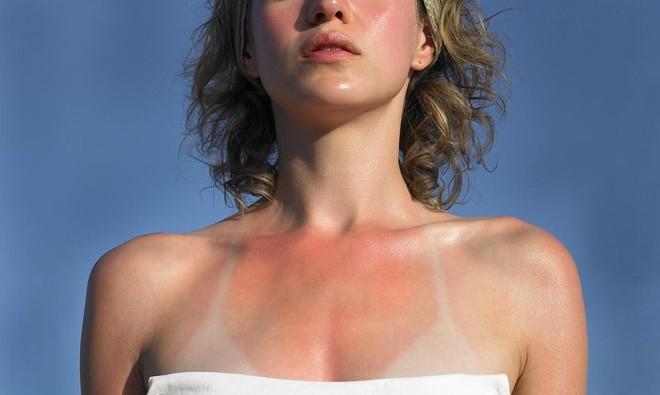 Những cách nhanh nhất cứu làn da cháy nắng để tránh hậu quả nghiêm trọng trong những ngày nắng kỷ lục này - Ảnh 2.