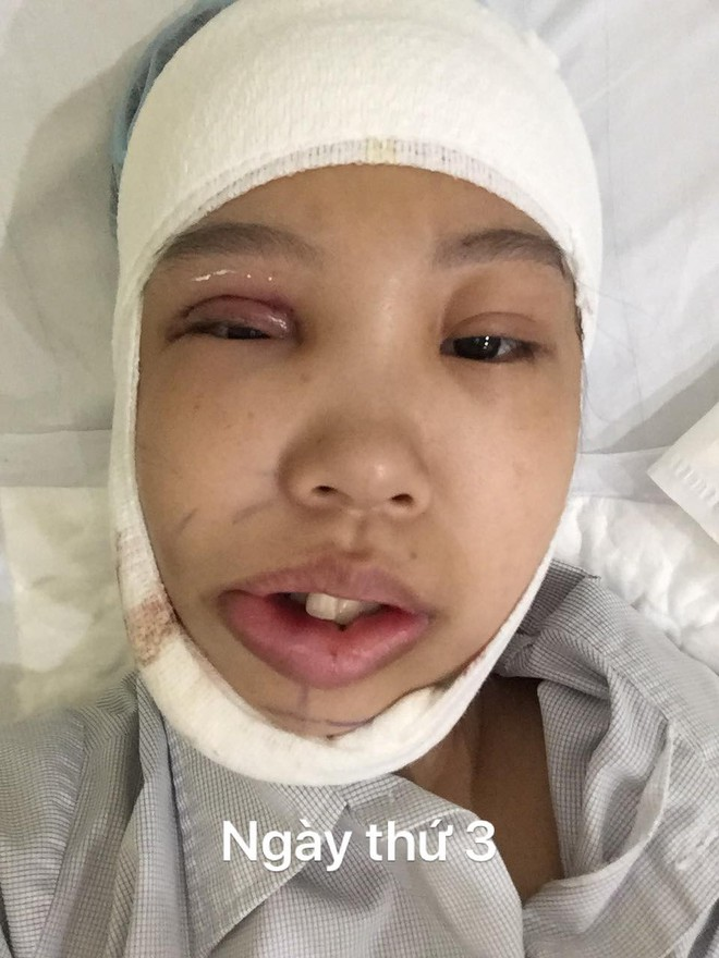 Bị bạn bè trêu chọc vì teo nửa bên mặt, cô gái Hà Nội lột xác sau phẫu thuật thẩm mỹ - Ảnh 3.
