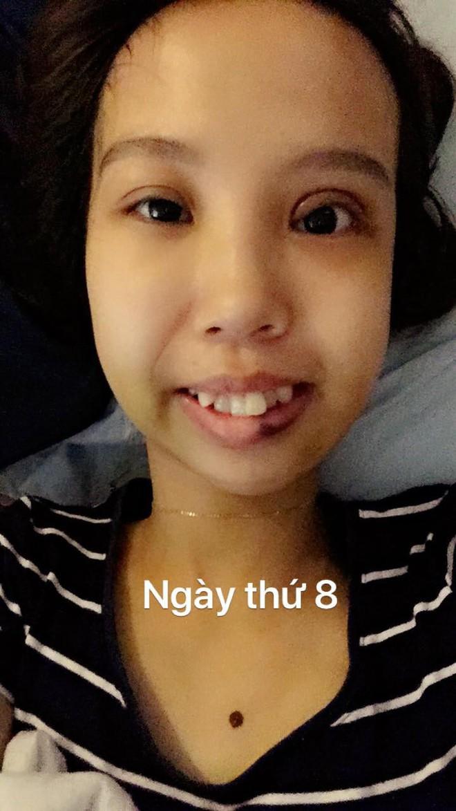 Bị bạn bè trêu chọc vì teo nửa bên mặt, cô gái Hà Nội lột xác sau phẫu thuật thẩm mỹ - Ảnh 4.