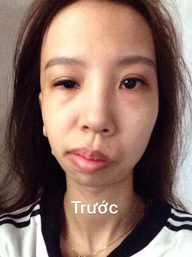 Bị bạn bè trêu chọc vì teo nửa bên mặt, cô gái Hà Nội lột xác sau phẫu thuật thẩm mỹ - Ảnh 2.