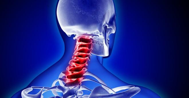 Đừng bỏ qua những dấu hiệu đau cổ, chúng đang báo động các căn bệnh bên trong đấy - Ảnh 1.